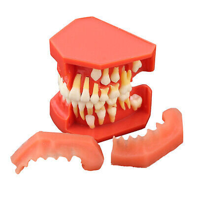 Dental Study Teeth Model Gum Removable Permanent Tooth Alternate Demonstration