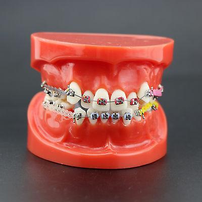 Dental Orthodontics Treatment Study Model With Metal Bracket Arch Wire Chain Tie