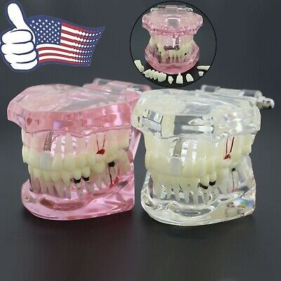 Dental Implant Typodont Restoration Disease Analysis Demo Study Teeth Model 2001
