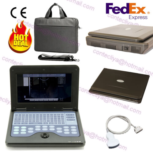 Usa Digital Ultrasound Scanner Portable Laptop Machine,3.5m Convex Probe Contec