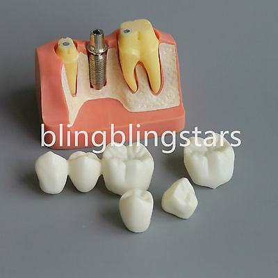 Brand New Dental Implant Analysis Crown Bridge Demonstration Study Teeth Model