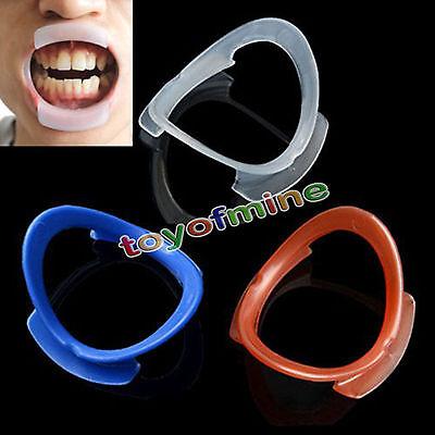10Pcs O Type Dental Teeth Whitening Cheek Retractor Lip Mouth Opener Holder