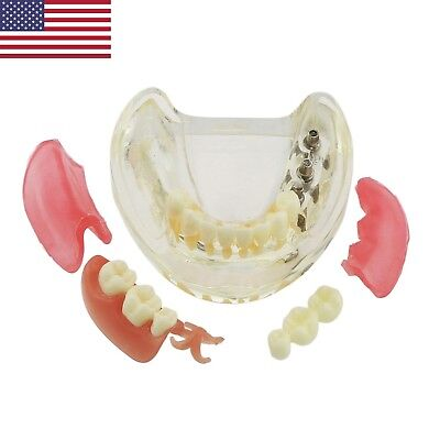 Dental Implant Restoration Model Removable Bridge Teeth Typodont 6006