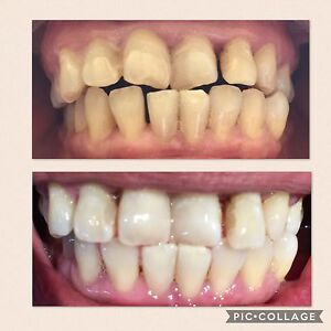 Cosmetic Teeth Whitening Liverpool Liverpool Area Preview