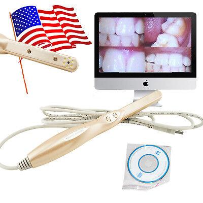 Usa Oc-5 Intraoral Oral Dental Camera Usb Dynamic 4 Mega Pixels 6-led W Software