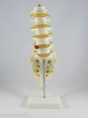 Professional Lumbar Vertebrae Life Size Medical Anatomy Model With Stand It-019