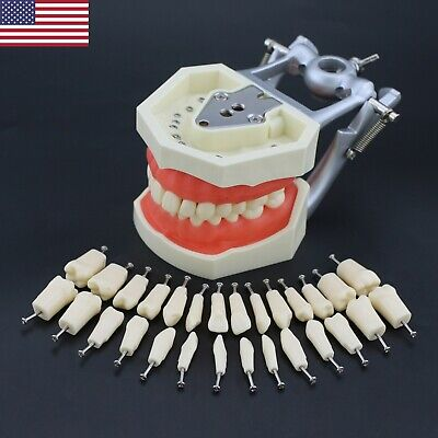 Kilgore Nissin Style Dental Typodont Model 28pcs Removable Screw-in Teeth M8011