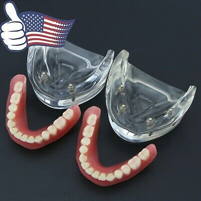 Dental 2 4 Implant Overdenture Typodont Teeth Restoration Lower Model 6002 6003