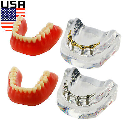 Usa Dental Implant Teeth Model Demo Overdenture Restoration Precision 4 Implants