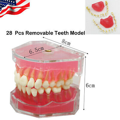 Usa Dental Typodont Pink Clear Standard Study Model With Removable Teeth 7008