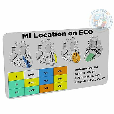 MI / STEMI Location (Doctor, Nurse, Student, Paramedic) pocket reference card