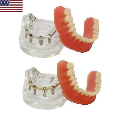 Dental Implant Bar Over-denture Restoration Model Lower Jaw Golen Sliver