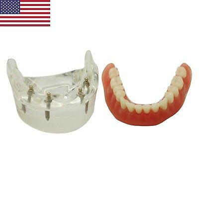 Dental Restoration Model Ball Implant Attachment Overdenture 4 Implant 600202