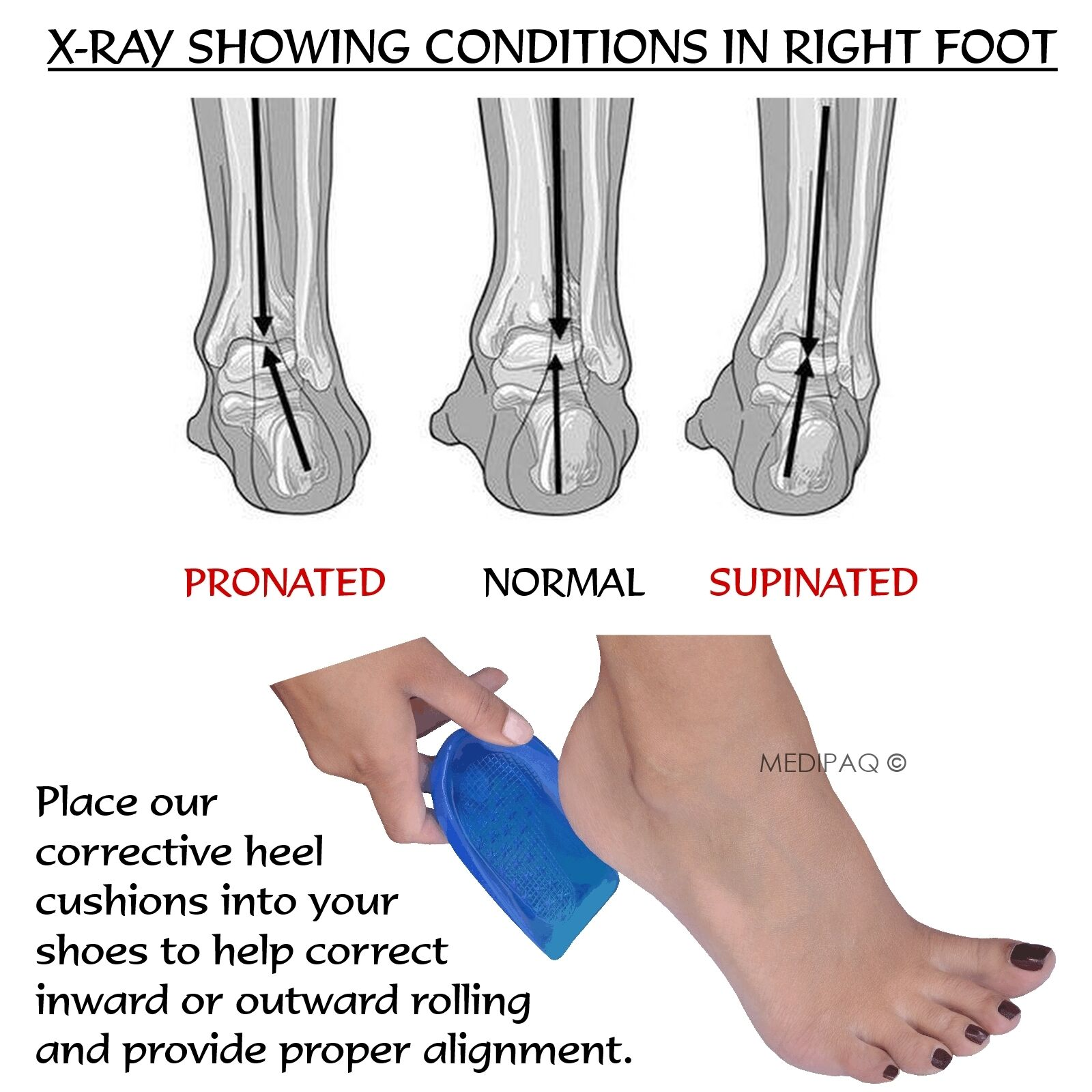 MEDIPAQ Posture Heel Levelling Foot Supports Angled Correct ...