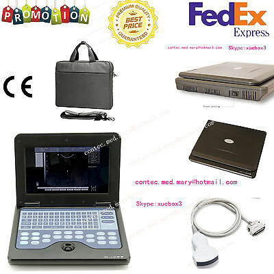 New Ce Portable Usb Digital Ultrasound Machine Scanner 3.5 Mhz Convex Probeusa