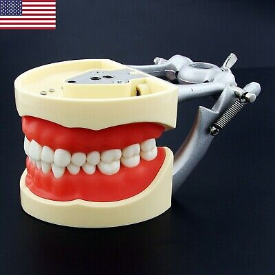 Usa Kilgore Nissin 200 Type Dental Typodont Model Removable 32pcs Screw-in Teeth