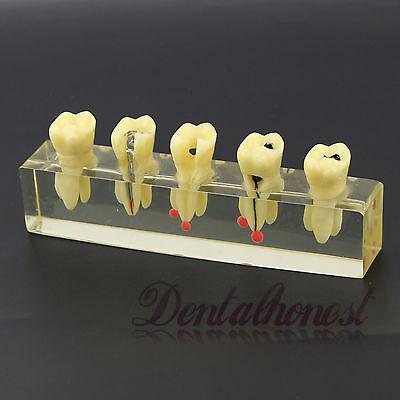Dental Study Teach Teeth Model Endodontic Treatment Demonstration Model 4012
