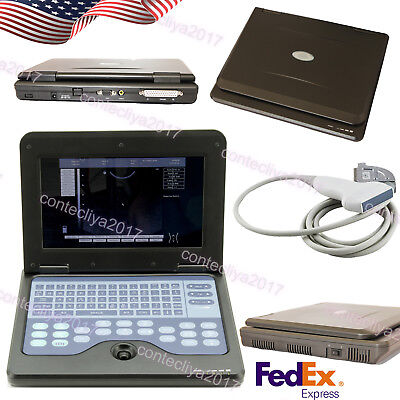 New Ce Portable Usb Digital Ultrasound Machine Scanner 7.5 Mhz Linear Probesw