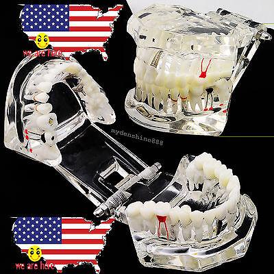 Usa Dental Pathological Implant Disease Teeth Model W Restoration Bridge Tooth