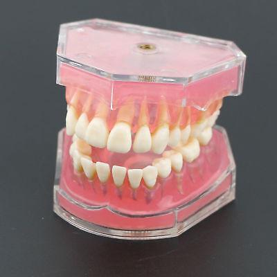 Dental Standard Plastic Teeth Study Teach Model Removable Teeth 4004 01 Pink