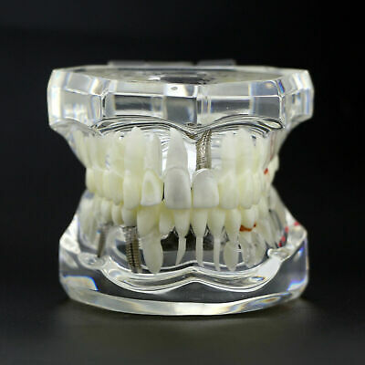 Dental Implant Model Analysis Demonstration Teeth Disease Restoration Typodont