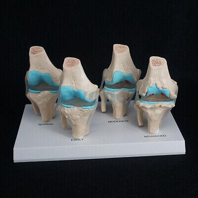 Anatomical Human Degenerative Knee Joint Disease Model Medical Skeleton Anatomy