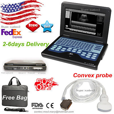Usaportable Laptop Machine Digital Ultrasound Scanner Convex Probe Cms600p2fda