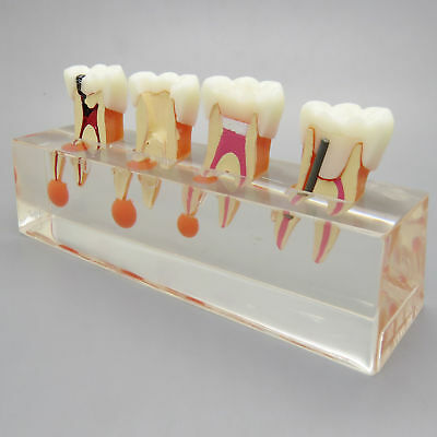 Dental Teeth Model Endodontic Treatment 4 Stage Demonstrates Study Model 4018