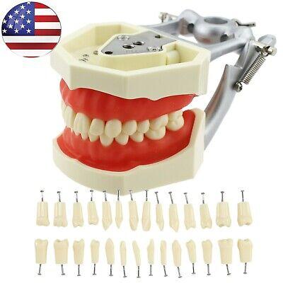 Dental Typodont Model Fit Kilgore Nissin 200 28 Pcs Replace Removable Teeth Usa