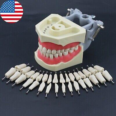 Columbia 860 Type Dental Typodont Teach Restorative Model Removable 32pcs Teeth
