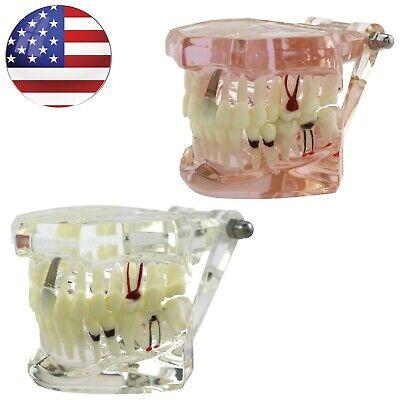 Dental Typodont Teeth Model Implant Caries Perio Disease Restoration Demo Usa