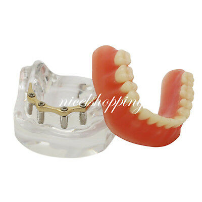 Dental Overdenture Restoration Typodont Implant Teeth Model With Silver Bar 6009
