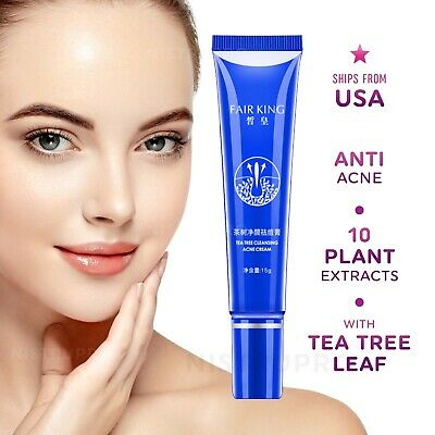 Instant ACNE Removal Cream Fast Anti Pimple Blackhead Treatment Clear Face Skin