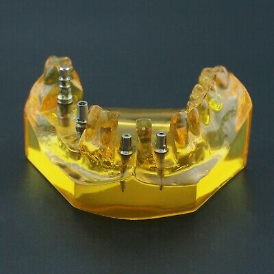 Dental Implant Typodont Removable Abutments Teeth Model Upper Jaw 201102