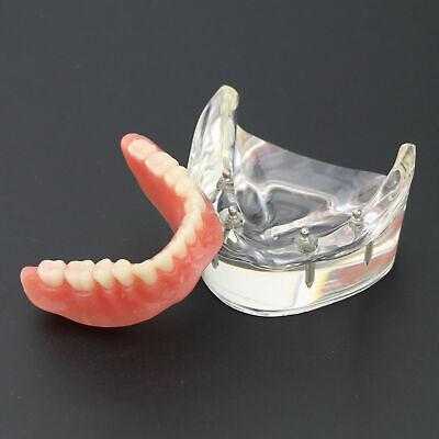 Dental Teeth Study Model Overdenture Inferior 4 Implant Demo Model 1pc