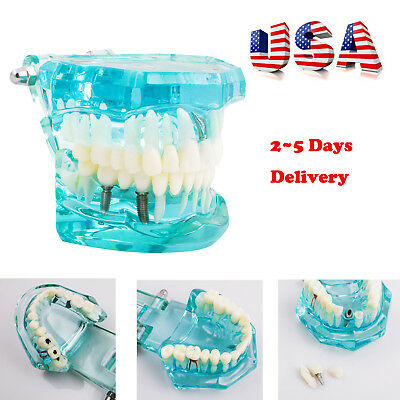 Dental Implant Disease Study Tooth Teeth Model Bridge Restoration Denture Usa