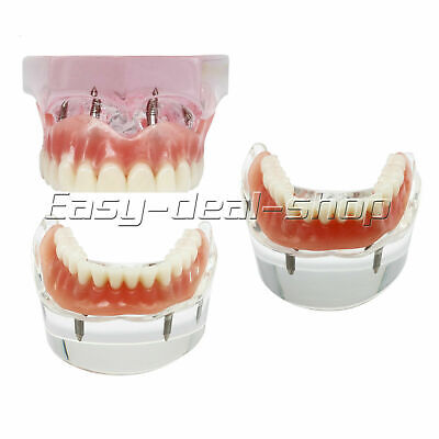 Dental 2 4 Implant Overdenture Typodont Teeth Restoration Upper Lower Model
