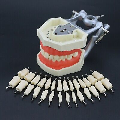 Kilgore Nissin 200 Type Dental Typodont Model Removable 28pcs Screw-in Teeth
