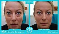 Resolve Wrinkles and Puffy Eye Bags Instantly