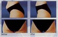 Lapex BCS LipoLaser and Eurowave Slimming & Toning machines