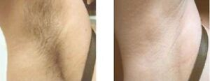 6 sessions Brazilian laser hair removal 199$