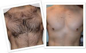 Hair Removal for Men Xmas Special 10% off Windsor Region Ontario image 1
