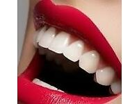 Professional laser teeth whitening