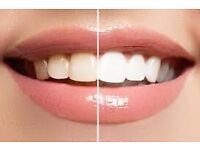 Teeth whitening, smile that shines