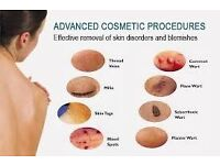 Mole / Milia /Skin-Tag Removal - Groupon offer