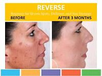 Rodan and Fields looking for skin care that actually works!?