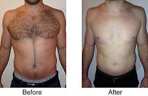 $199 Full Body Soprano Laser Hair Removal
