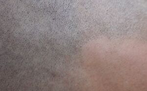 ARE YOU TIRED OF BEING BALD? Cornwall Ontario image 6