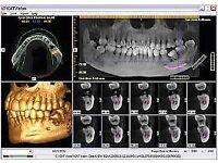 Dental CBCT scanner | Dental CBCT scans | Dentist scanner CT scan