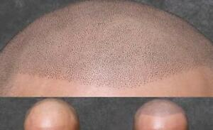 ARE YOU TIRED OF BEING BALD? Kitchener / Waterloo Kitchener Area image 7